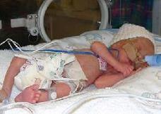 Los respiradores mecánicos en bebés muy prematuros pueden desarrollar daños en los pulmones