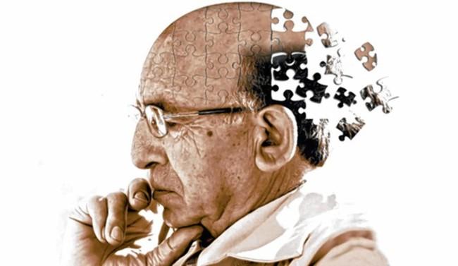 Científica mexicana investiga la enfermedad de Alzheimer en tejido cerebral humano