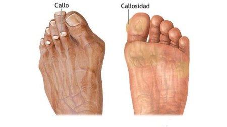 Callosidades en los pies del corredor: sus causas y cómo prevenirlas