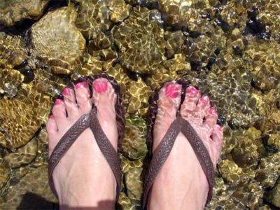 Riesgos de andar siempre con sandalias de dedo