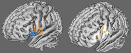 Los científicos ahora pueden predecir la inteligencia a través de la actividad cerebral