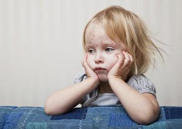 Una niña de 3 años muere a causa del virus de la varicela