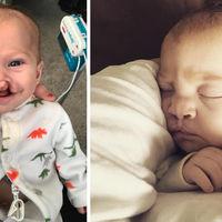 Una persona anónima paga la operación de fisura labial de un bebé tras ver que se burlaban de él en las redes