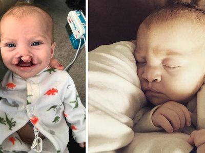 Una persona anónima paga la operación de labio leporino de un bebé tras ver que se burlaban de él en las redes