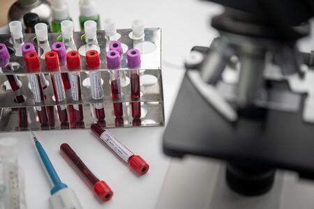 La Ema Absuelve A Astrazeneca De Eventos Tromboticos La Vacuna Contra Covid Es Segura Y Efectiva Asegura La Agencia Europea