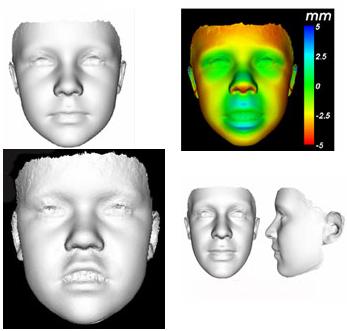 Nuevo método para el diagnóstico temprano de los desórdenes genéticos en los niños, la cara es el espejo de la enfermedad