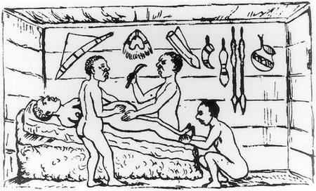 Breve historia de la cesárea