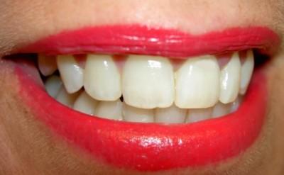 Consejos para enfrentar la xerostomía o síndrome de boca seca
