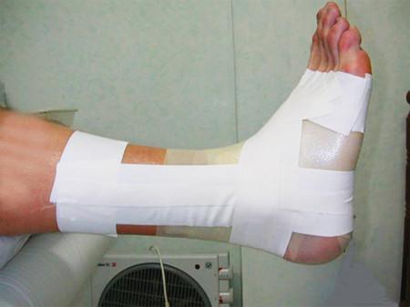 El vendaje como método de prevención