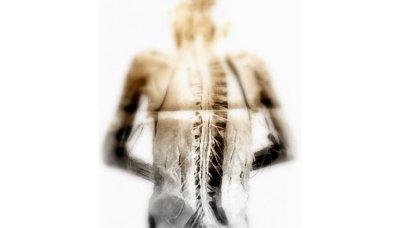 Los hombres también pueden sufrir osteoporosis