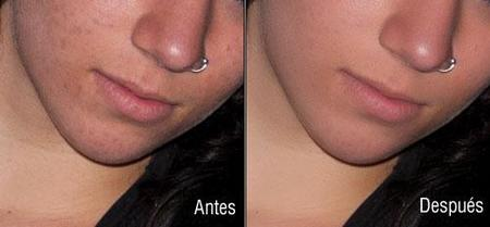 antes-despues-1.jpg