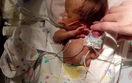 """El emotivo """"club de los abrazos"""" que ha contribuído a que un bebé prematuro logre salir adelante"""