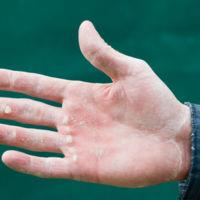 Callos en la mano del deportista, consejos para acabar con ellos