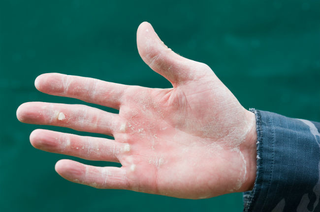 Después de la operación adelgaza la mano