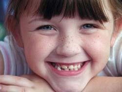 Un golpe en un diente: graves consecuencias