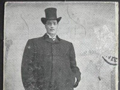 La única persona de la historia médica que pasó de enano a gigante