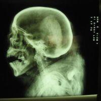 Bisturíes ultrasónicos, o cómo hacer neurocirugía sin abrir el cráneo del paciente