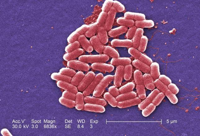 La bacteria resistente a todos los antibióticos hallada en EEUU es una mala noticia, pero no es el fin del mundo