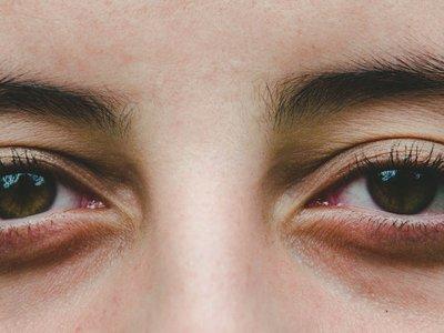 Glaucoma: qué es, cómo se detecta y qué puedes hacer para prevenirlo