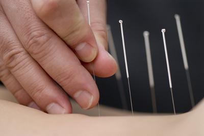 Embellecer con acupuntura