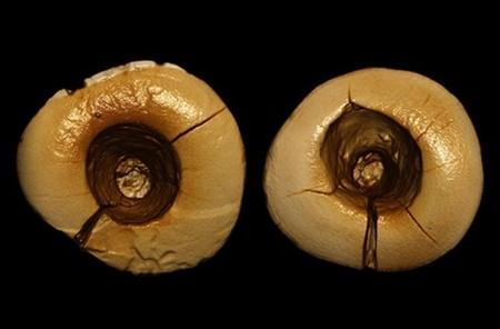 ¿Ya había empastes dentales hace 13.000 años?