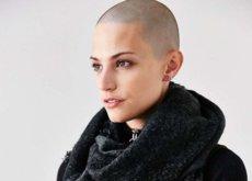 """""""No es el fin del mundo"""", Dayna Christison, la jóven que venció al cancer que le convirtió en modelo"""