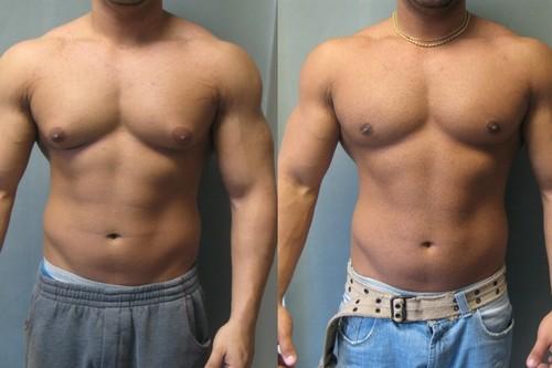 Todo lo que tienes que saber sobre la ginecomastia o el agrandamiento de los pechos en los hombres