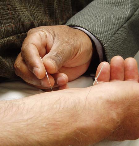 agujas-sesion-acupuntura