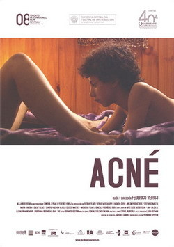 acne-estrenos.jpg