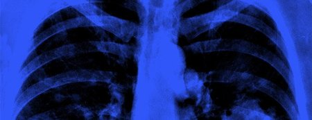 Cuba lanza un nuevo tratamiento contra el cáncer de pulmón