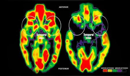 ¿Cómo afecta el estilo de crianza de los padres al desarrollo cerebral de los hijos?