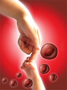 El autotrasplante de células del cordón umbilical cura a una niña con leucemia