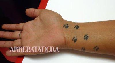 Lo que puede costar quitarse un tatuaje con láser en Barcelona