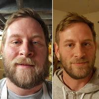 Cómo cambia tu cara cuando dejas de ser alcohólico
