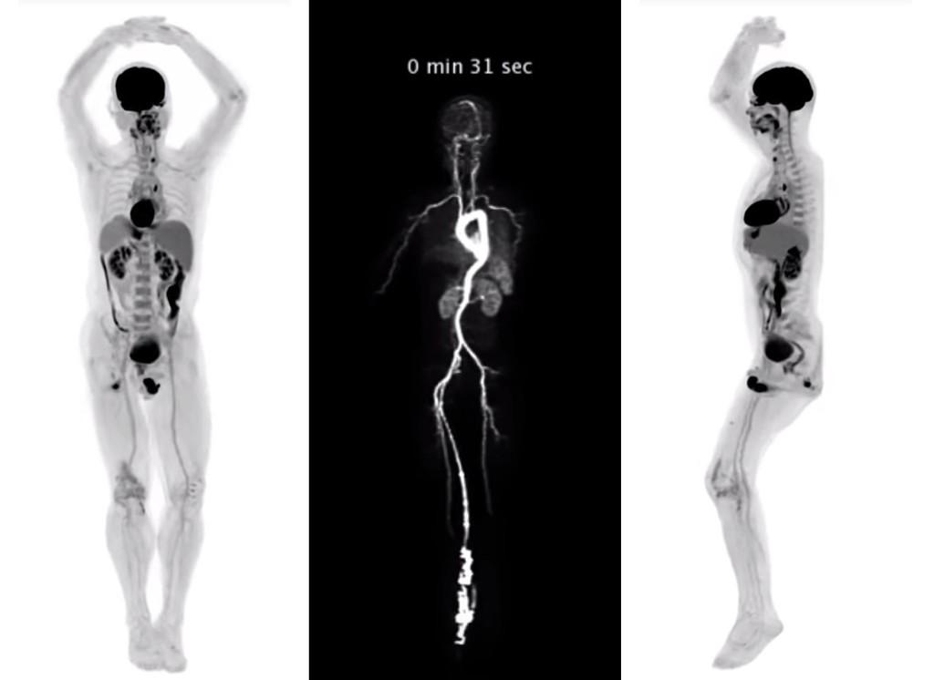 El primer escáner de cuerpo completo llega para cambiar la tomografía en tiempo real y es hasta 40 veces menos invasivo