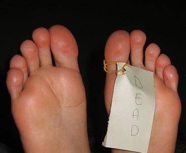 Dos posibles causas de las durezas y los callos de tus pies